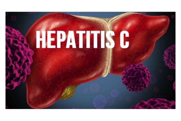 Hepatitis C in a New Era: Treatment of Hepatitis C